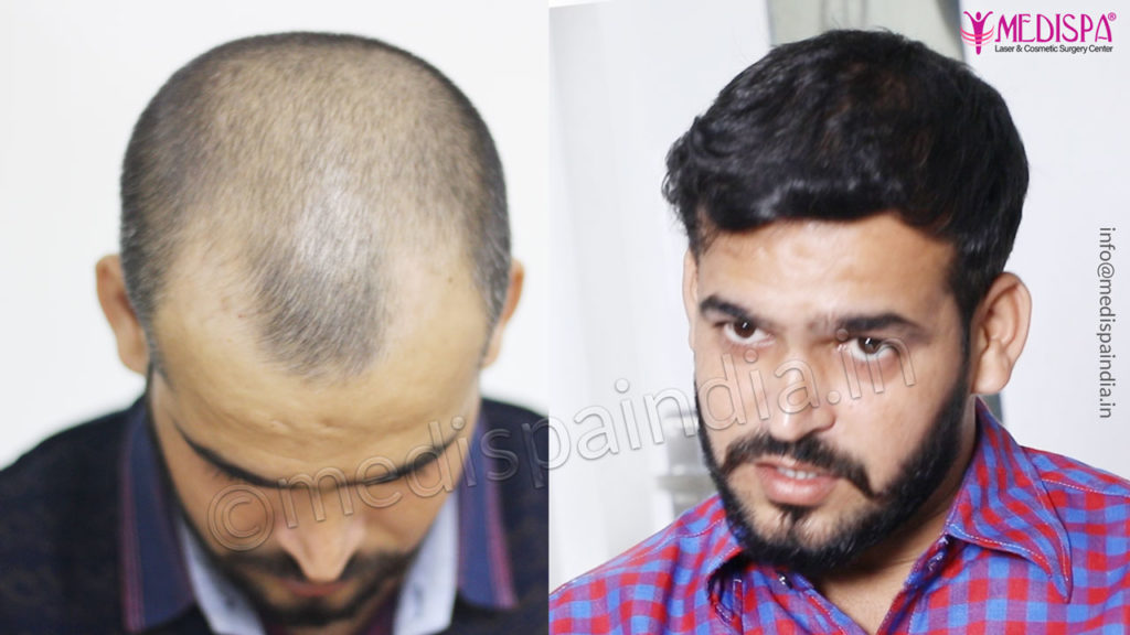 hair restoration jaipur results