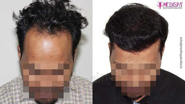 best hair transplant doctor in India