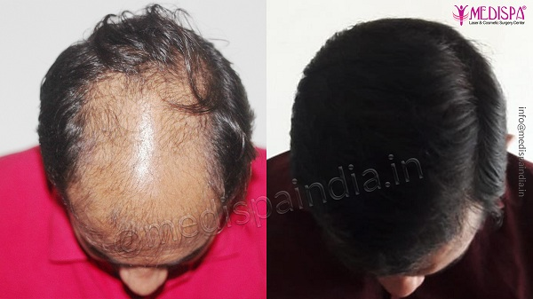 Hair transplant: The permanent solution for pattern baldness
