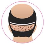 Combine FUT & FUE Hair Transplant in Jodhpur