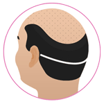FUT Hair Transplant in Kota